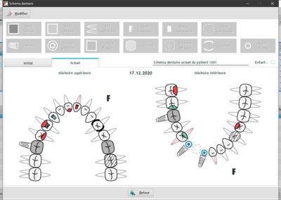 Le schéma dentaire peut être géré graphiquement par simple clic dans le logiciel suisse EasyGest pour les dentistes.