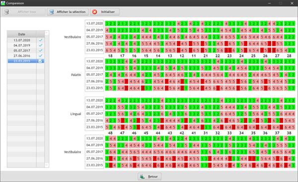 Il est possible de comparer jusqu'à 5 schéma parodontal dans notre logiciel