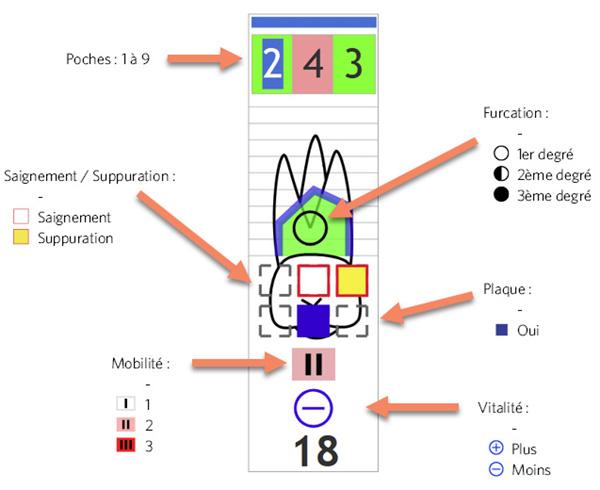 Le schéma paro contient la mesure des poches, les saignements et suppuration, les degrés de furcation, les plaques, la mobilité et la vitalité des dents